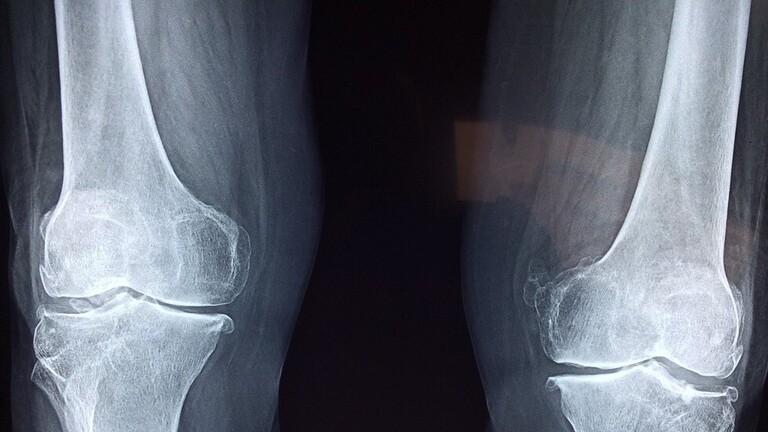 العلماء يستخدمون تقنية ثورية تحصد الخلايا الجذعية لعلاج العظام!