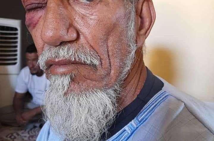 """عصابة   تحت حماية ميليشيات """"بوليساريو"""" تعتدي على شيخ كبير وابن أخته بالضرب والجرح  وتسرق أموال الأسرة  بمخيمات تندوف"""