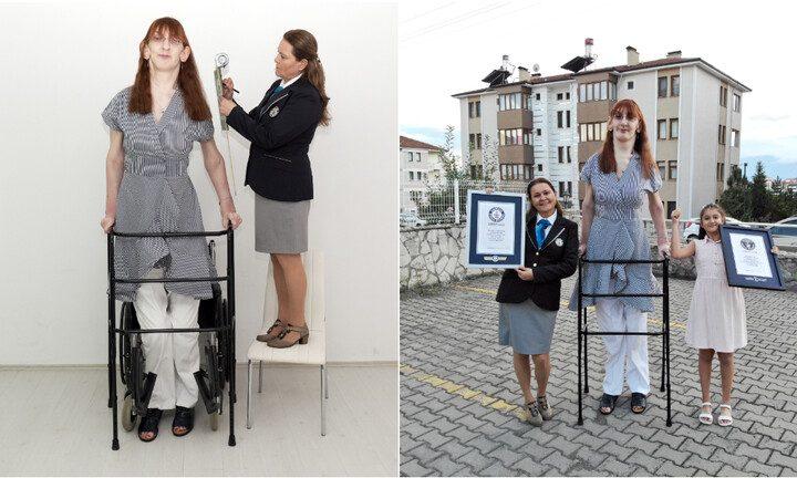تركية تدخل غينيس كونها أطول امرأة على قيد الحياة في العالم